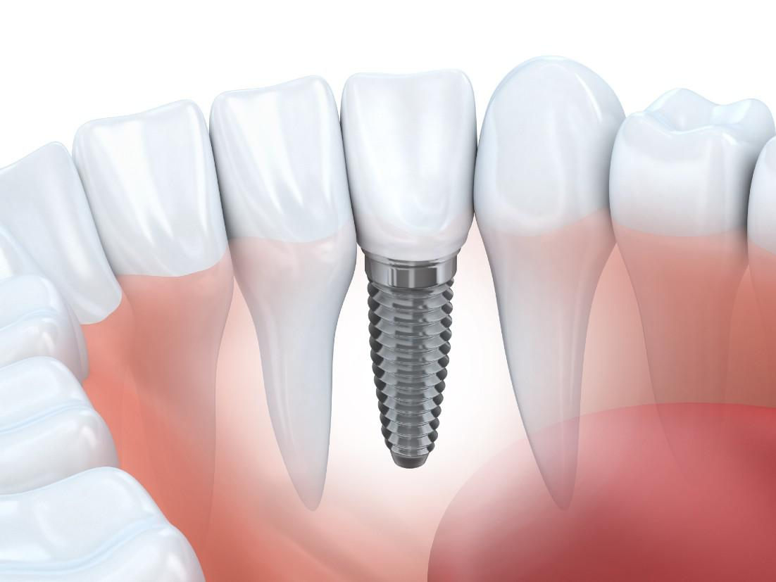 Dental Implants Glendale, CA